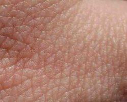 Dermis humana.